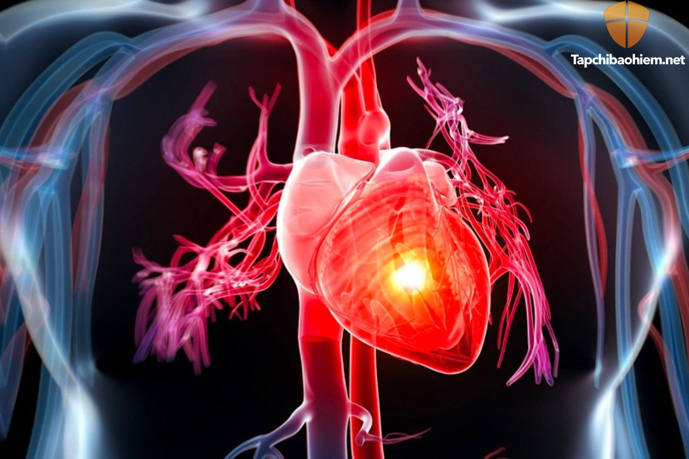 Bệnh suy tim là gì? nguyên tắc điều trị và kiểm soát bệnh suy tim