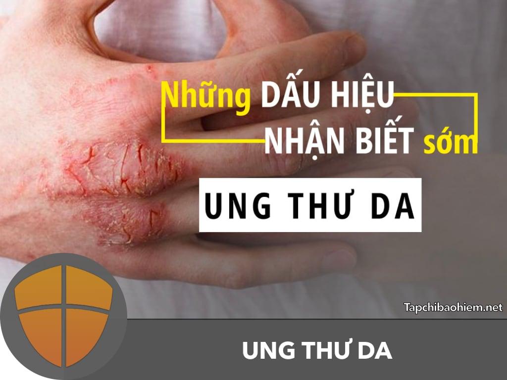Tổng quan về UNG THƯ DA, dấu hiệu nhận biết, cách phòng ngừa và điều trị